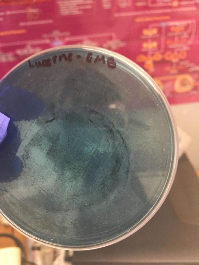 Garg, Jana, Rai, Wu Fig. H: Positive growth of blackish colonies on EMB plate.